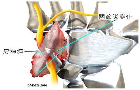 腕隧道症候群的超音波導引注射治療01