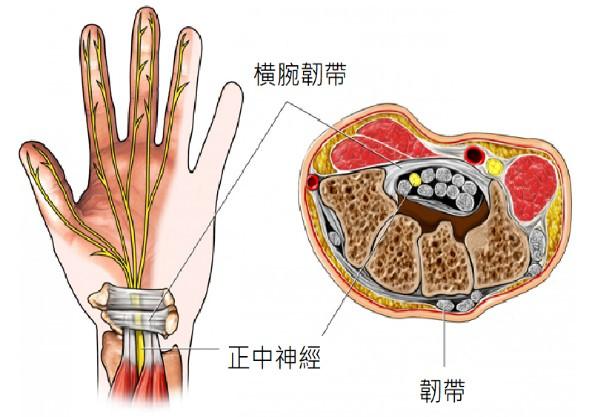 腕隧道症候群的超音波導引注射治療02